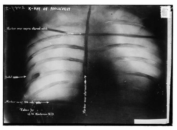Roosevelt x-ray